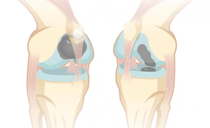 Endoprotezy powierzchniowe